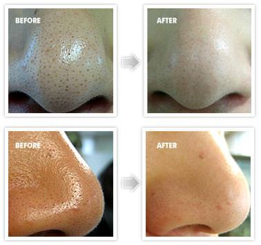 how to get rid of blackheads fast overnight naturally