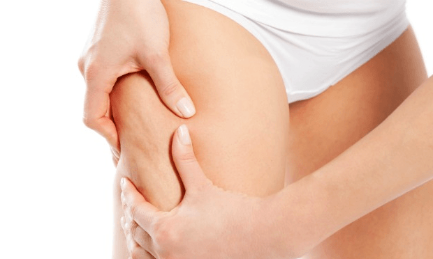 Home Remedies for Cellulite Reduction