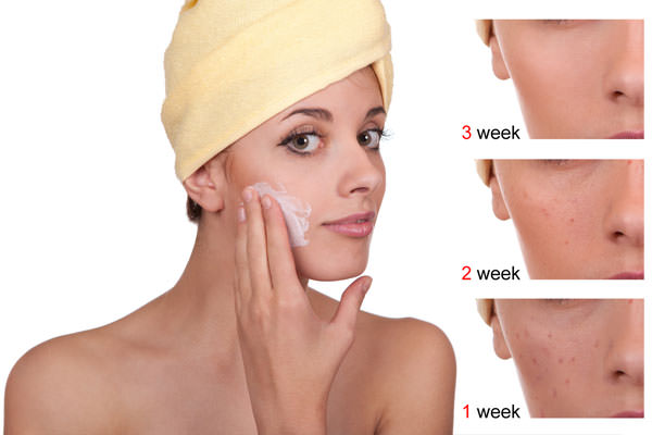 How to Avoid Acne Scars Naturally