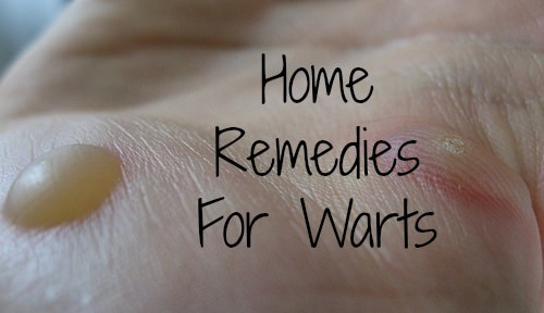 Home Remedies to Get Rid of Warts Naturally Fast Permanently