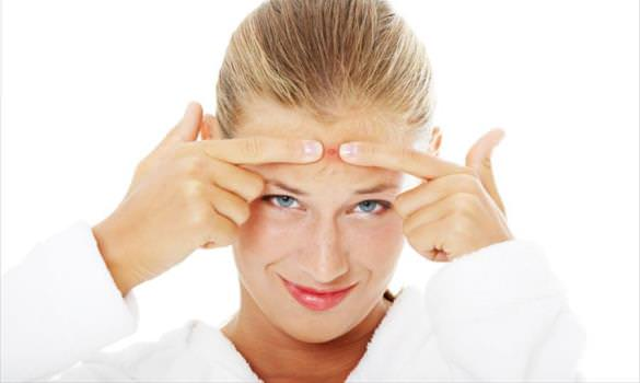 how to get rid of pimples in a week acne in a week