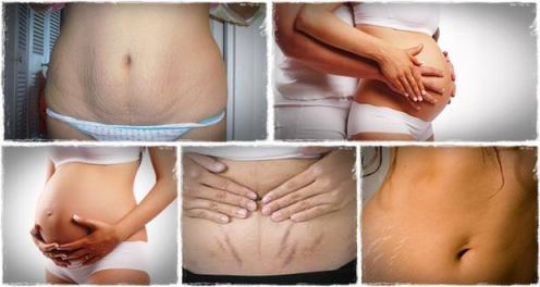 Home Remedies For Stretch Marks Removal Naturally at Home