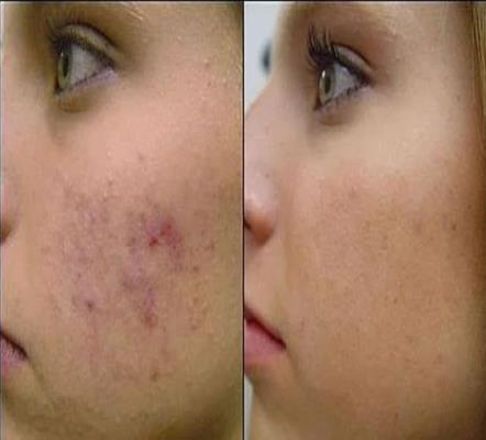 Home Remedies for Acne Scars Removal Naturally