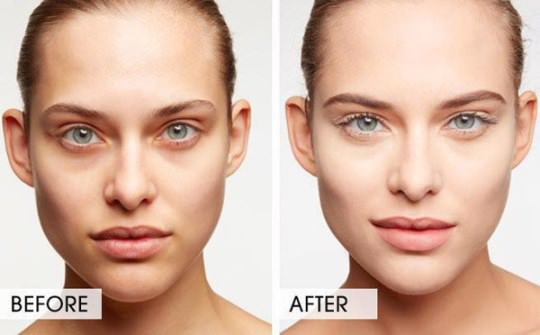 Remove Dark Circles Under Your Eyes Naturally and Fast