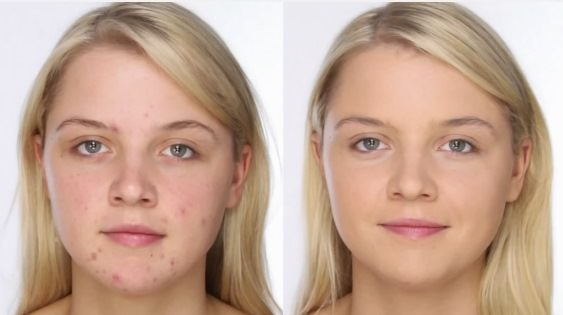 Home Remedies for Acne Removal and Treatment