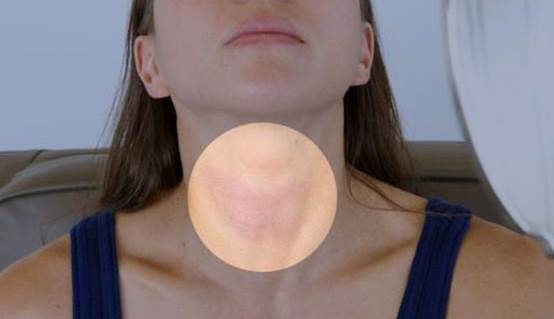 Home Remedies for Goiter Treatment Naturally