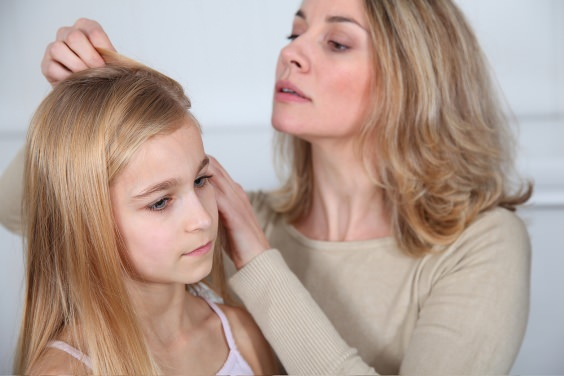 How to Get Rid of Lice Fast Head Lice Treatment
