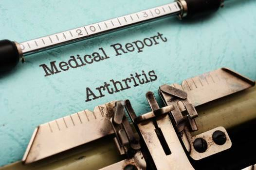 Home Remedies for Arthritis Treatment Naturally at Home