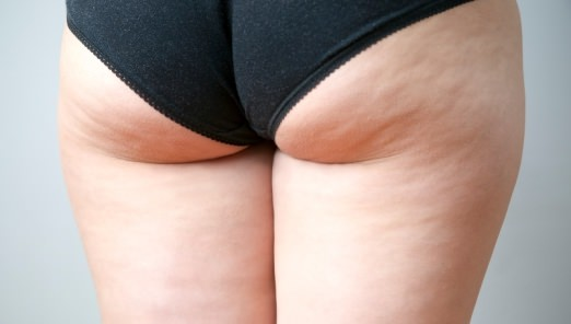 How to Get Rid of Cellulite Naturally Home Remedies Diet and Exercise