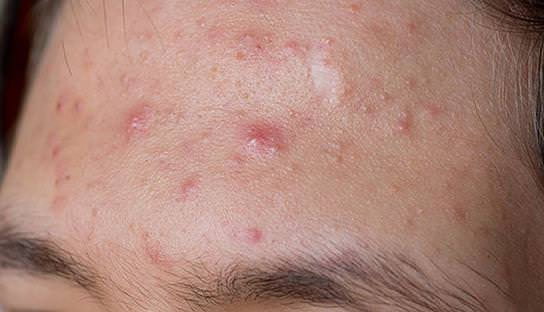 how to prevent pimples stop pimples from coming back