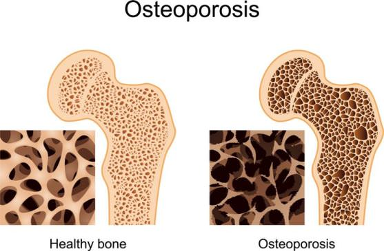 Home Remedies for Osteoporosis Treatment Naturally