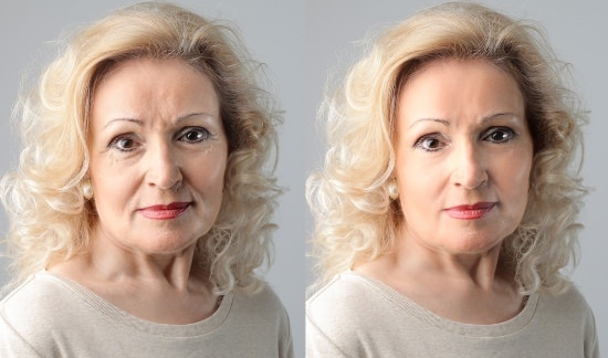Home Remedies for Wrinkles Get Rid of Wrinkles Naturally