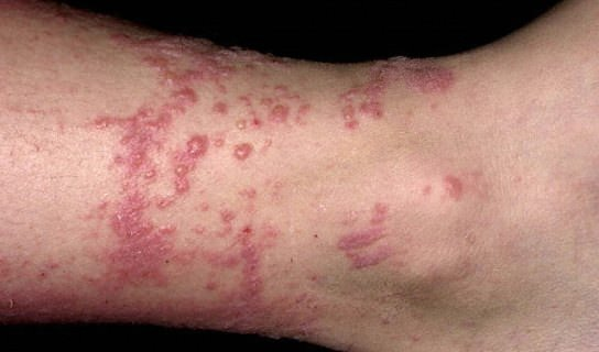 How to Get Rid of Poison Ivy Rashes Fast And Naturally