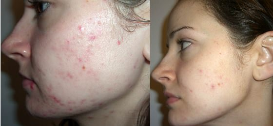 How to get rid of acne in 1 day