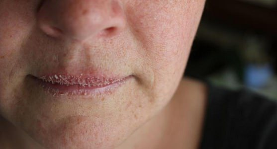 How to Get Rid of Chapped Lips Fast & Naturally
