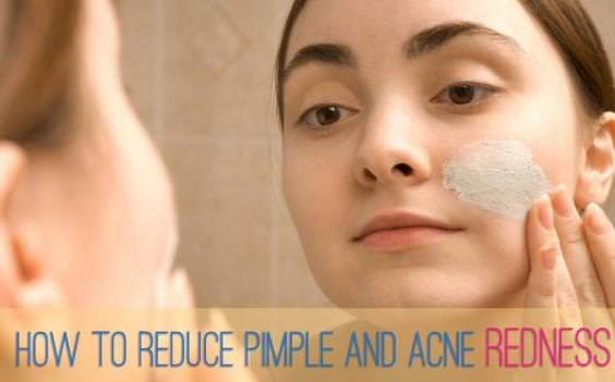 how to reduce the size of a Pimple - Reduce Pimple size