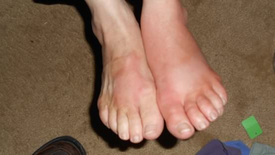 Swollen Feet Remedies for Treatment at Home