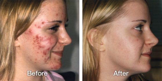 Home Remedies for Acne Get Rid of Acne Naturally