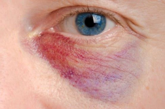 Home Remedies to Get Rid of Black Eye Fast Naturally