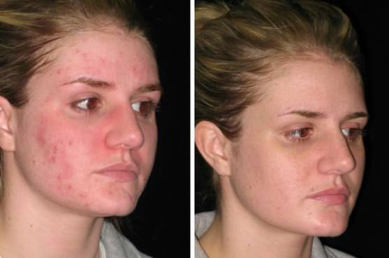 How to Get Rid of Acne Naturally Home Remedies