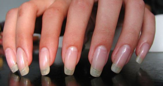 How to Grow Your Fingernails Fast