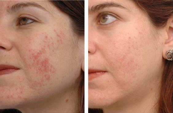 Get Rid of Acne Scars With Home Remedies