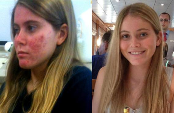 How to Get Rid of Acne Fast Acne Treatment