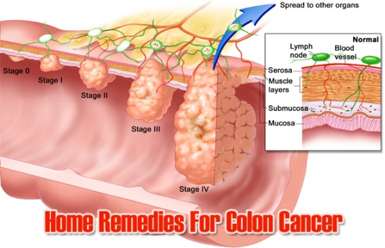 Home Remedies To Prevent Colon Cancer