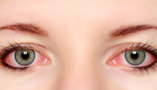 natural remedies for pink eye treatment