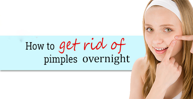 how to get rid of pimples overnight fast naturally